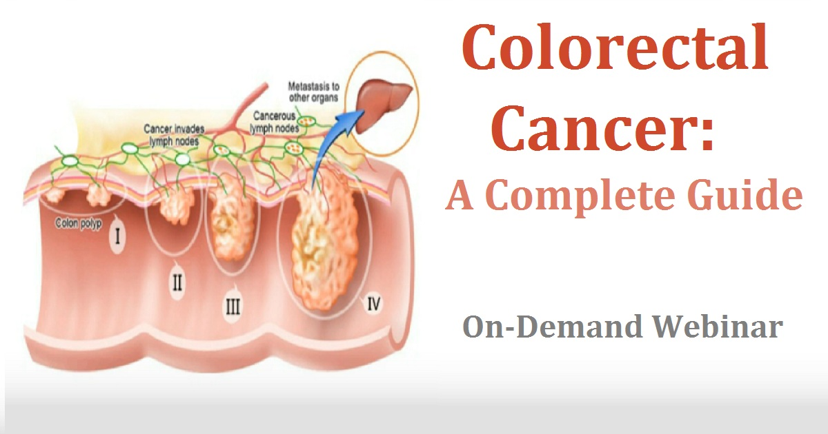 Colorectal Cancer: A Complete Guide